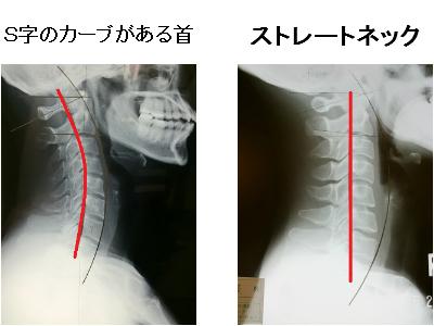 S字のカーブがある首とストレートネック